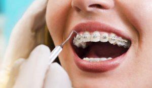Devlet Hastanesi Diş Teli Fiyatları 2021