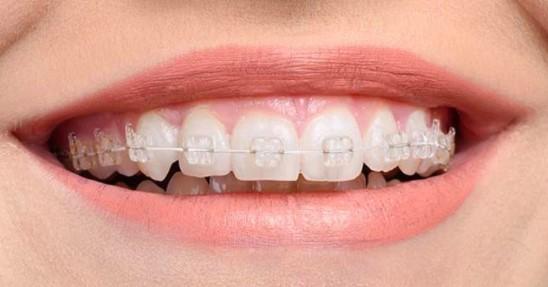 Diş Teli Fiyatları 2021 Özel ve Devlet Hastanesi Diş Teli Fiyatları