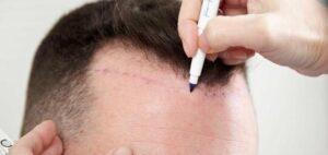En İyi Saç Ekim Tekniği 2021 Saç Ekiminde En Yeni Yöntemler