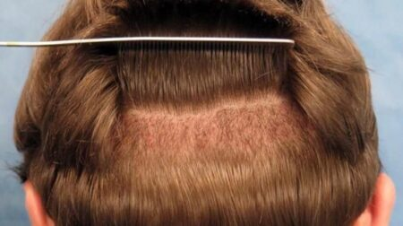 Saç Ekimine Alternatif Yöntemler 2021 (En Yeni Yöntem)